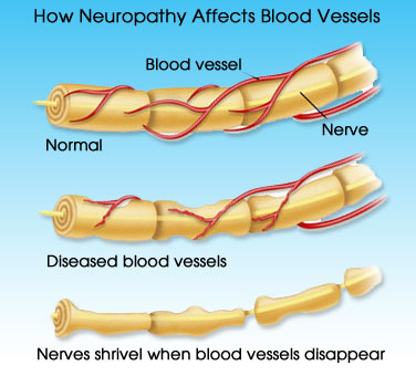Neuropathy Diagram Of Blood Vessels